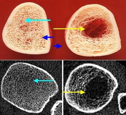 mit weltraumtechnik der osteoporose auf der spur