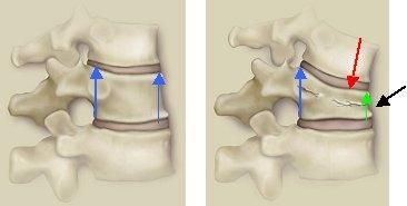 Osteoporose, Osteoporosezentrum München, Dr. med. Radspieler, Folgen, Wirbeleinbruch