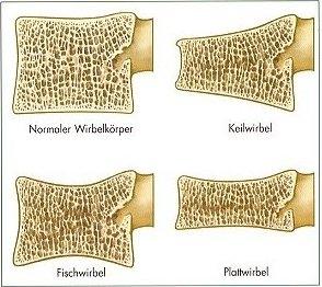 Osteoporose, Osteoporosezentrum München, Dr. med. Radspieler, Folgen, Typische Wirbelkörperbrüche