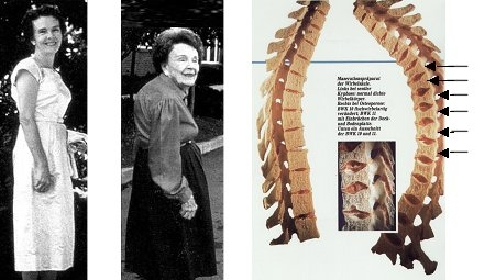Osteoporose, Osteoporosezentrum München, Dr. med. Radspieler, Folgen, Größenverlust (Witwenbuckel)