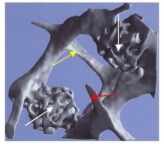 Osteoporose, Osteoporosezentrum München, Dr. med. Radspieler, Knochendichtemessung, Knochendichte, Diagnostik, Mokrokallusbildung