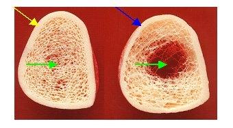 Osteoporose, Osteoporosezentrum München, Dr. med. Radspieler, Knochendichtemessung, Knochendichte, Diagnostik, 3-dimensionale Bälkchenstruktur des Knochens, Struktur der Knochen, Knochenvergleich