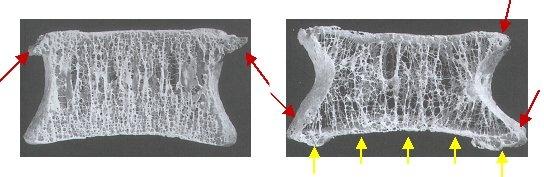 Osteoporose, Osteoporosezentrum München, Dr. med. Radspieler, Osteoporose des Mannes, Testosteron