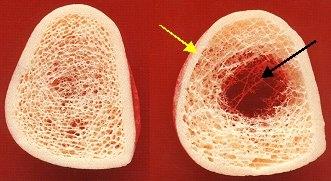 Osteoporose, Osteoporosezentrum München, Dr. med. Radspieler, Ursachen, Knochenmasseverlust
