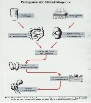 Osteoporose, Osteoporosezentrum München, Dr. med. Radspieler, Ursachen, Altersosteoporose, Sekundärer Hyperparathyreoidismus