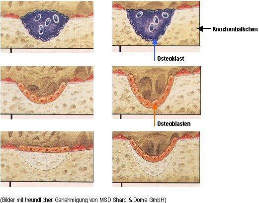 Osteoporose, Osteoporosezentrum, Dr. med. Radspieler, Ursachen, Remodeling