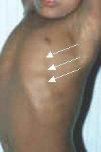 rachitischer rosenkranz osteoporose zentrum muenchen
