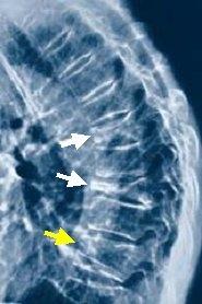 osteoporose-osteoporosezentrum-muenchen-osteoporosezentrum-muenchen-dr-med-radspieler-diagnosti_cu1530w185h278